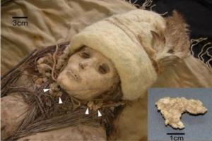 En Eski Peynir 3800 Yıllık Bir Mumyanın Yanında Bulundu